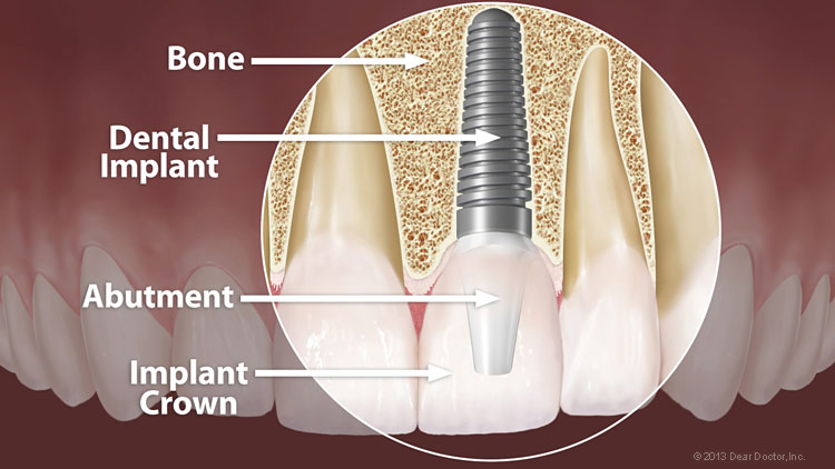 Dental Implant Anatomy Large Steven Leach Dmd
