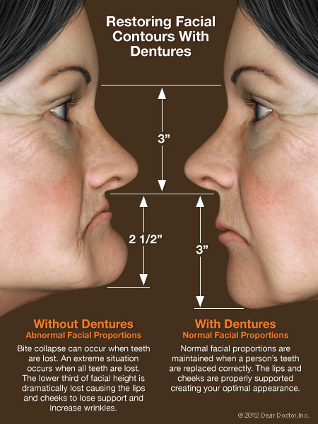 Denture Faces