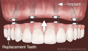 Implants Replace all teeth