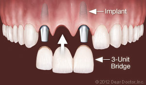 Implants Replace Multiple Teeth