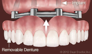 Implants support removable dentures