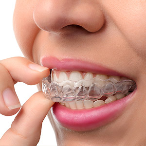 Consider Clear Aligners Instead of Braces for Your Teen