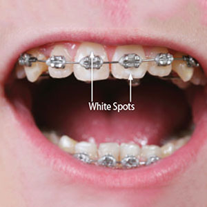 Prevent White Spots on Teeth While Wearing Braces with Diligent Oral Hygiene